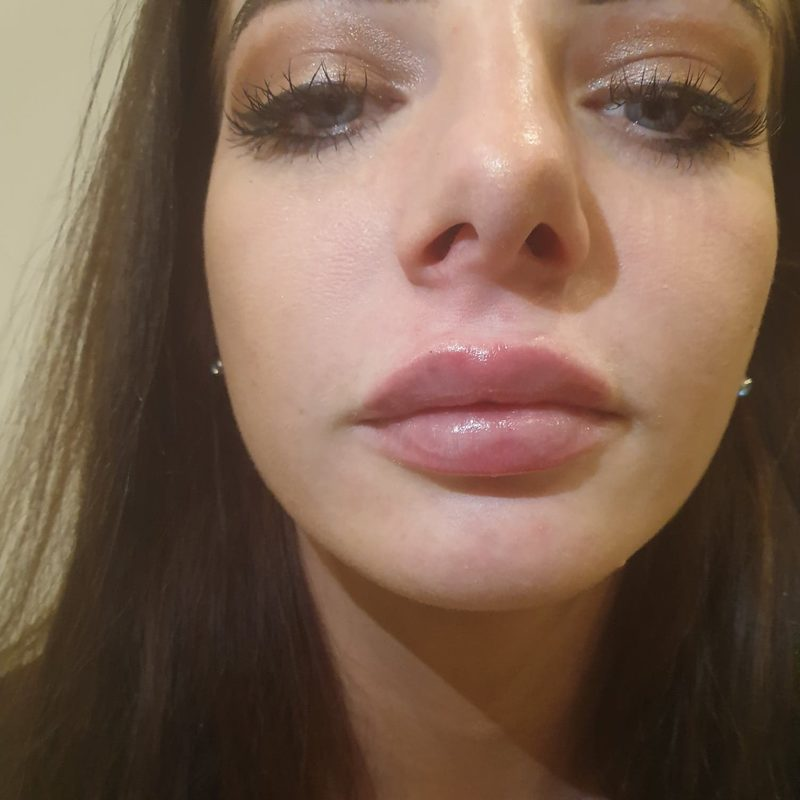 after lip filler and augmentation