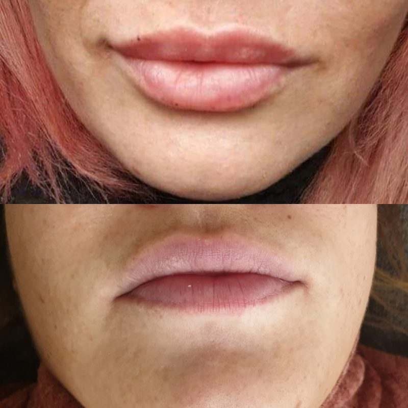 before and after dermal lip filler