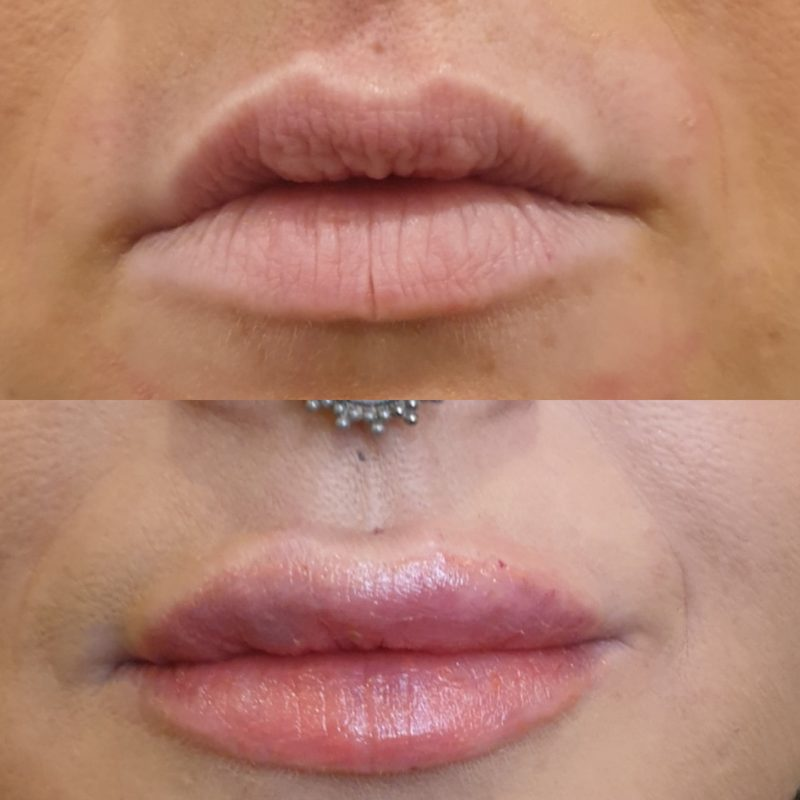 before and after dermal lip filler treatment