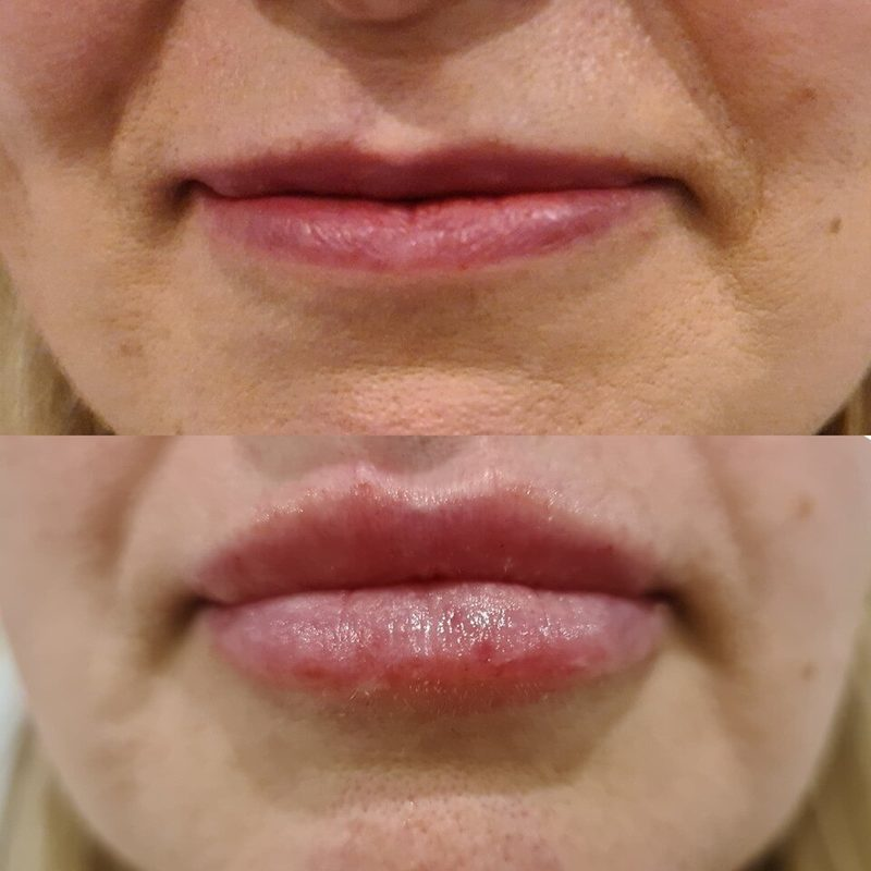 before and after luscious lip filler